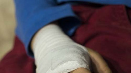 В Кинешме две аварии с пешеходами: травмы получили ребенок и взрослый